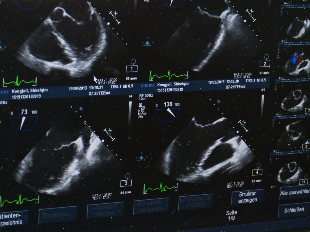 The Process of Ultrasound Imaging